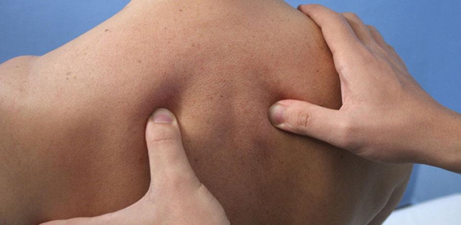La dorsalgie (ou en avoir plein le dos)